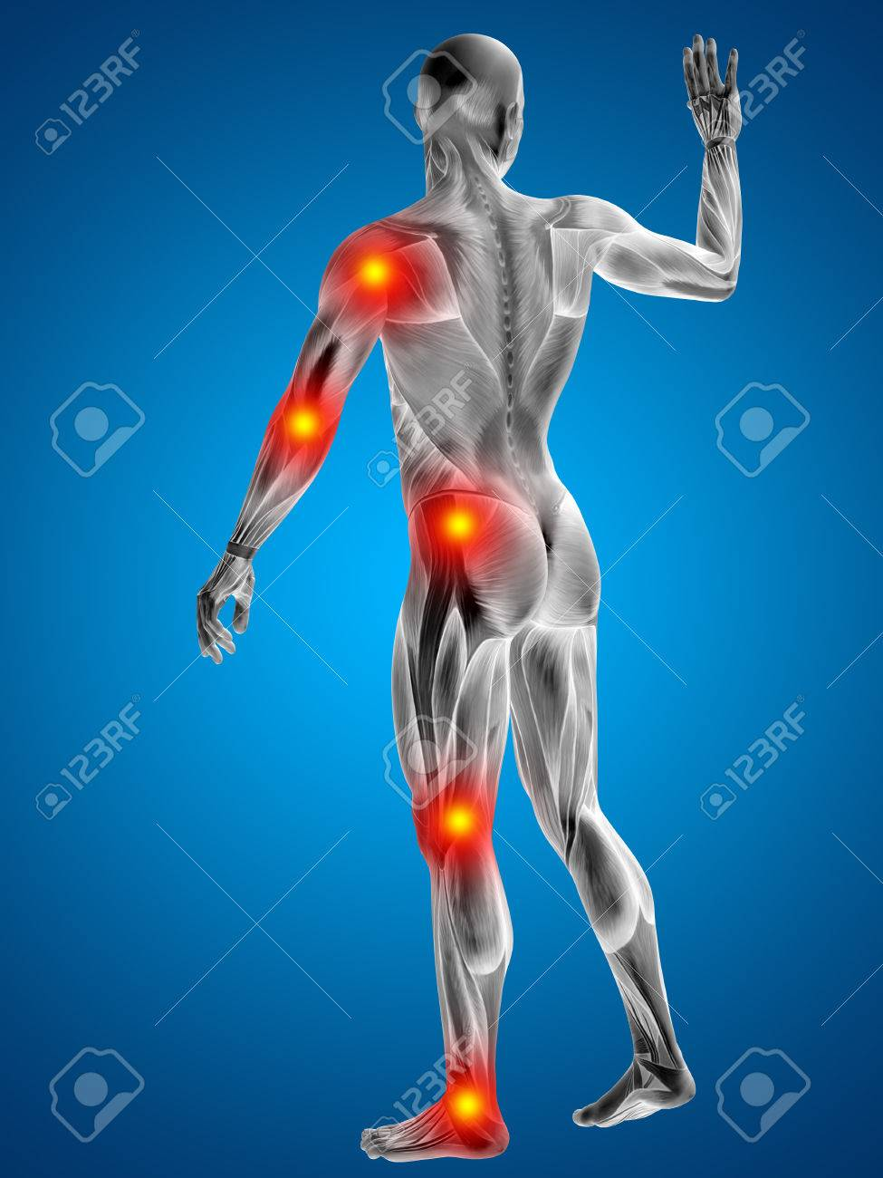 Conceptual 3D Human Man Anatomy Joint Pain Body On Blue Background ...