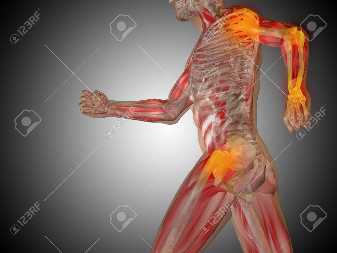 Conceptual Anatomía Cuerpo Humano Dolor Articular En Fondo Gris ...