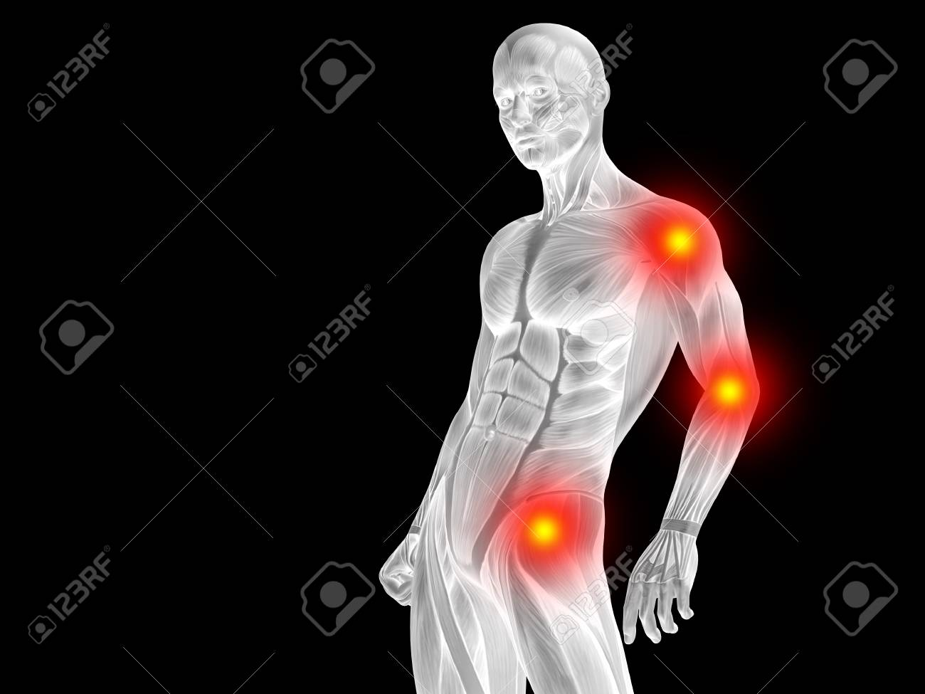 Conceptual Human Body Anatomy Articular Pain On Isolated On Black ...