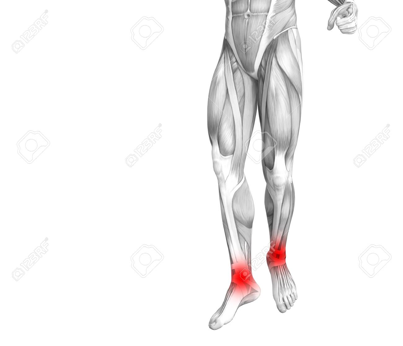 Conceptual Ankle Human Anatomy With Red Hot Spot Inflammation ...