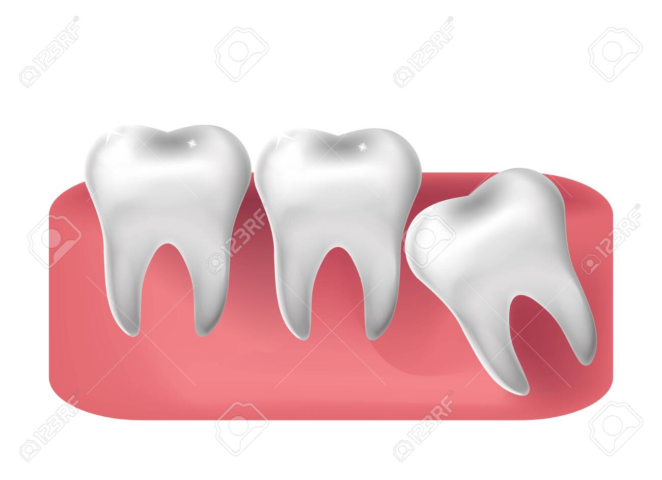 Wisdom tooth cut through, 3d realistic style. Dentistry, wisdom teeth extraction concept. Vector illustration. - 149023717