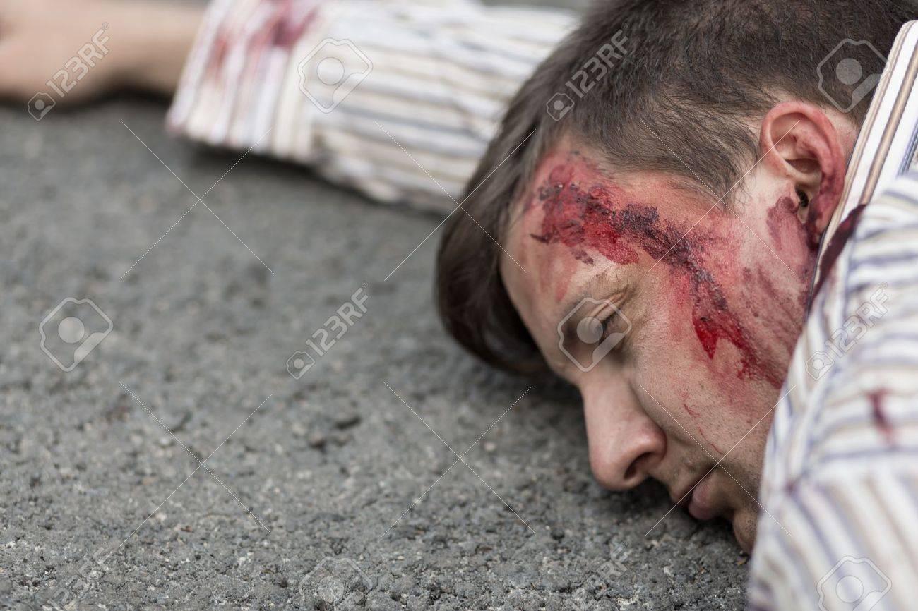 Imágenes de la herida en la cabeza