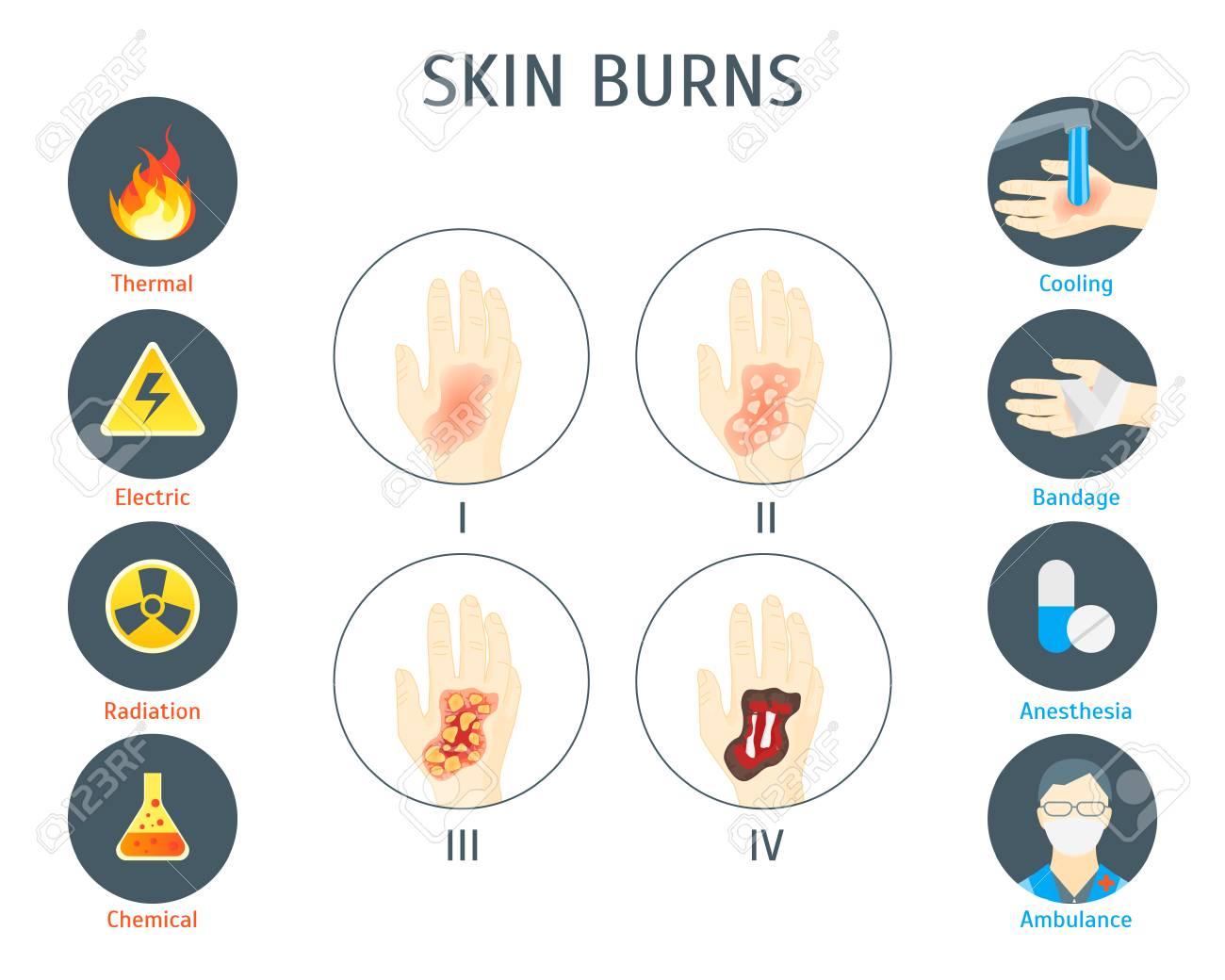 Human Skin Burns Info-graphic Card Poster. - 87211414