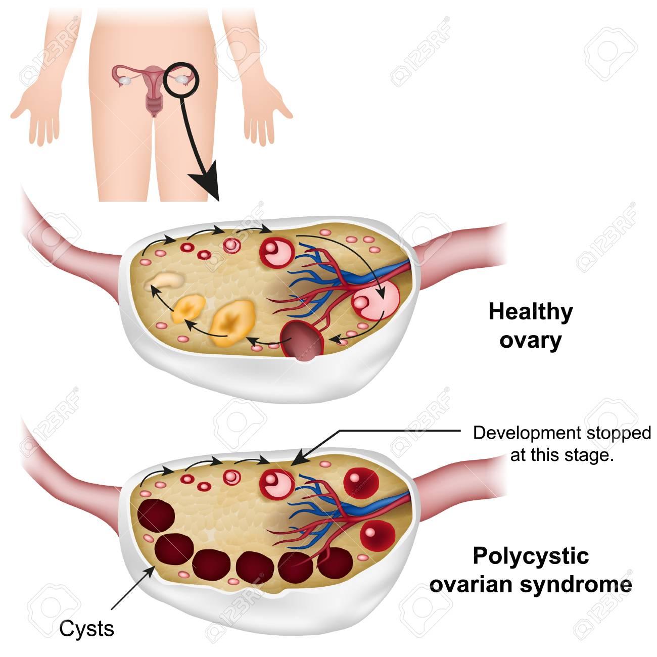 Polycystic ovarian syndrome medical vector illustration - 117795147