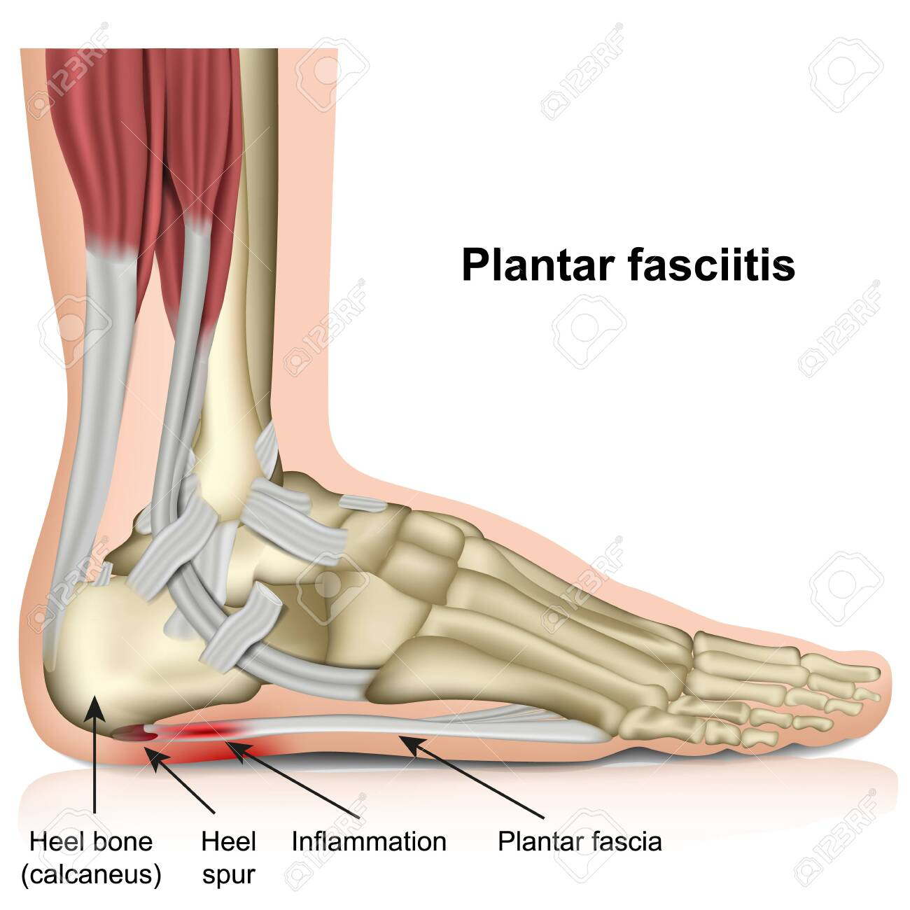 Plantar fasciitis 3d medical vector illustration on white background - 124273737