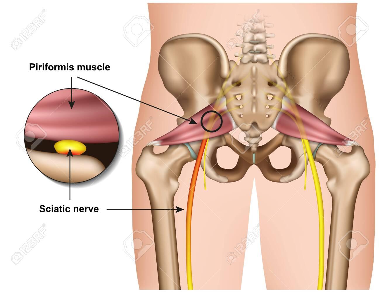 piriformis syndrome 3d medical vector illustration on white background - 124273658