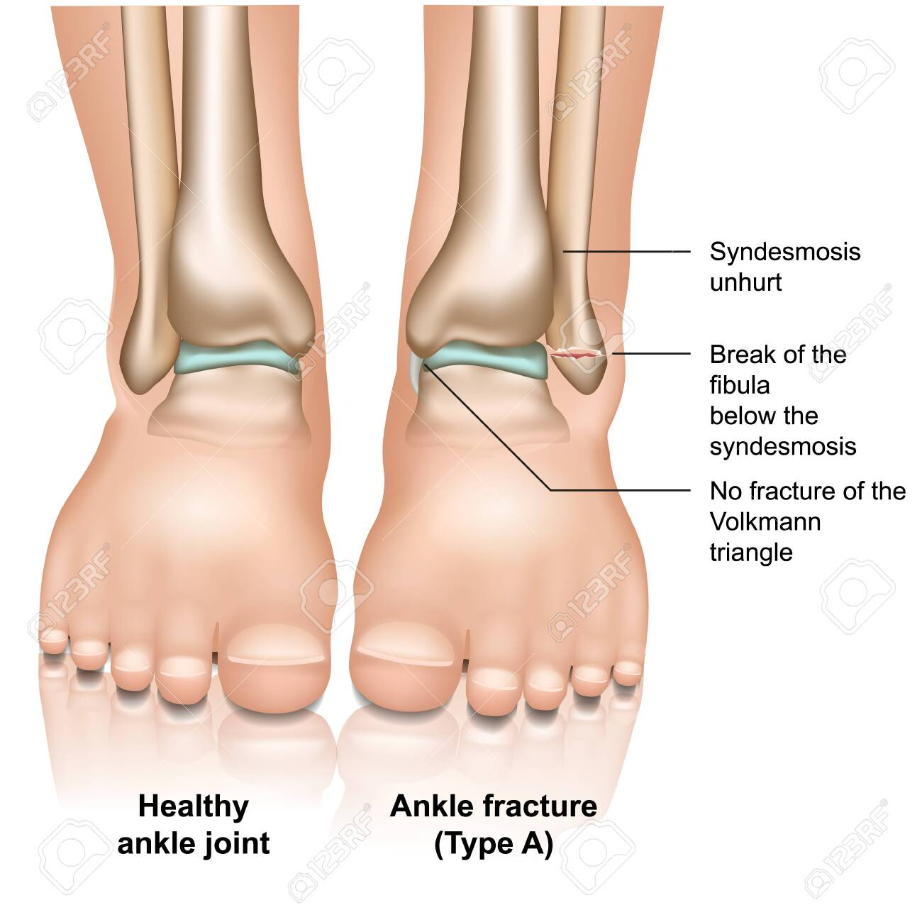 Ankle joint fracture type A medical vector illustration on white background - 124273742