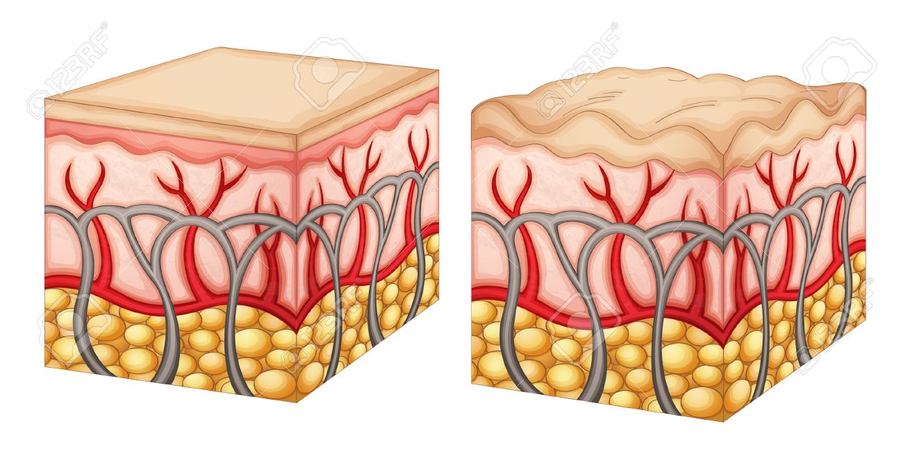 Diagram showing normal skin tissue and skin tissue with cellulite Stock Vector - 15915087