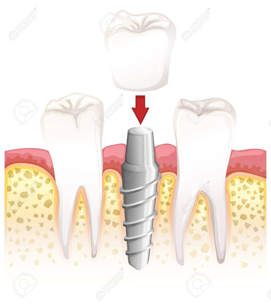 Illustration showing dental crown procedure Stock Vector - 15914861