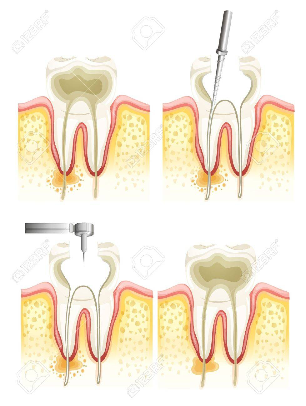 Illustration of the dental root canal process Stock Vector - 16214872