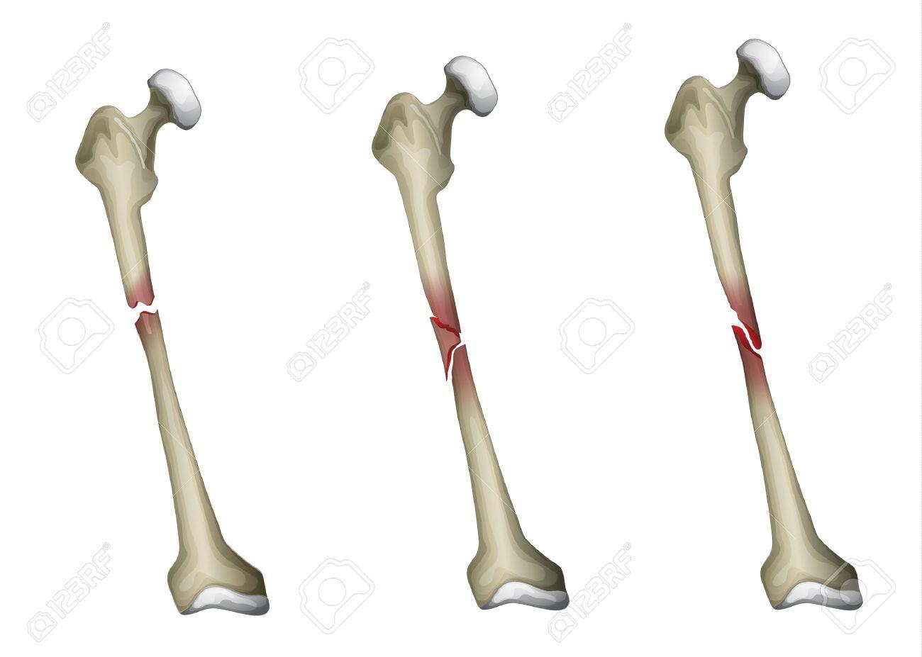 Drei Arten Von Knochenbrüchen Im Femur Lizenzfrei Nutzbare ...