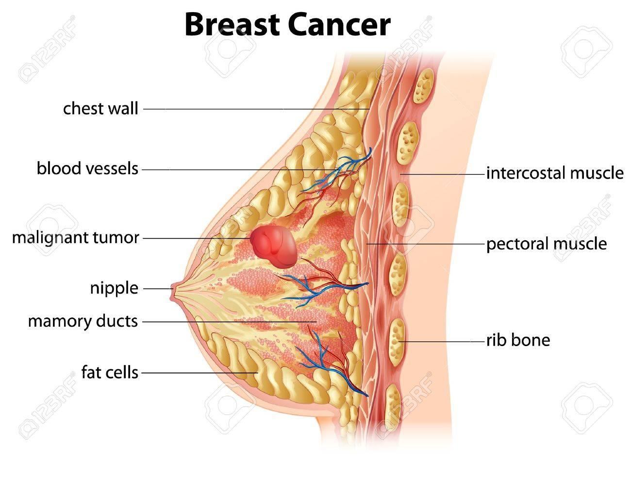 Cross Section Showing Formation Of Breast Cancer Royalty Free ...