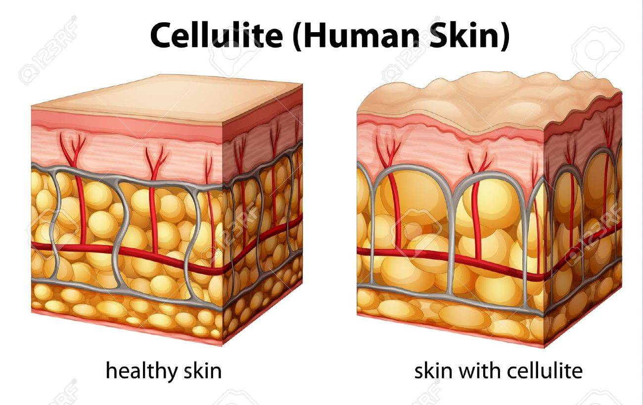 Illustration of skin cross section showing cellulite Stock Vector - 20060151