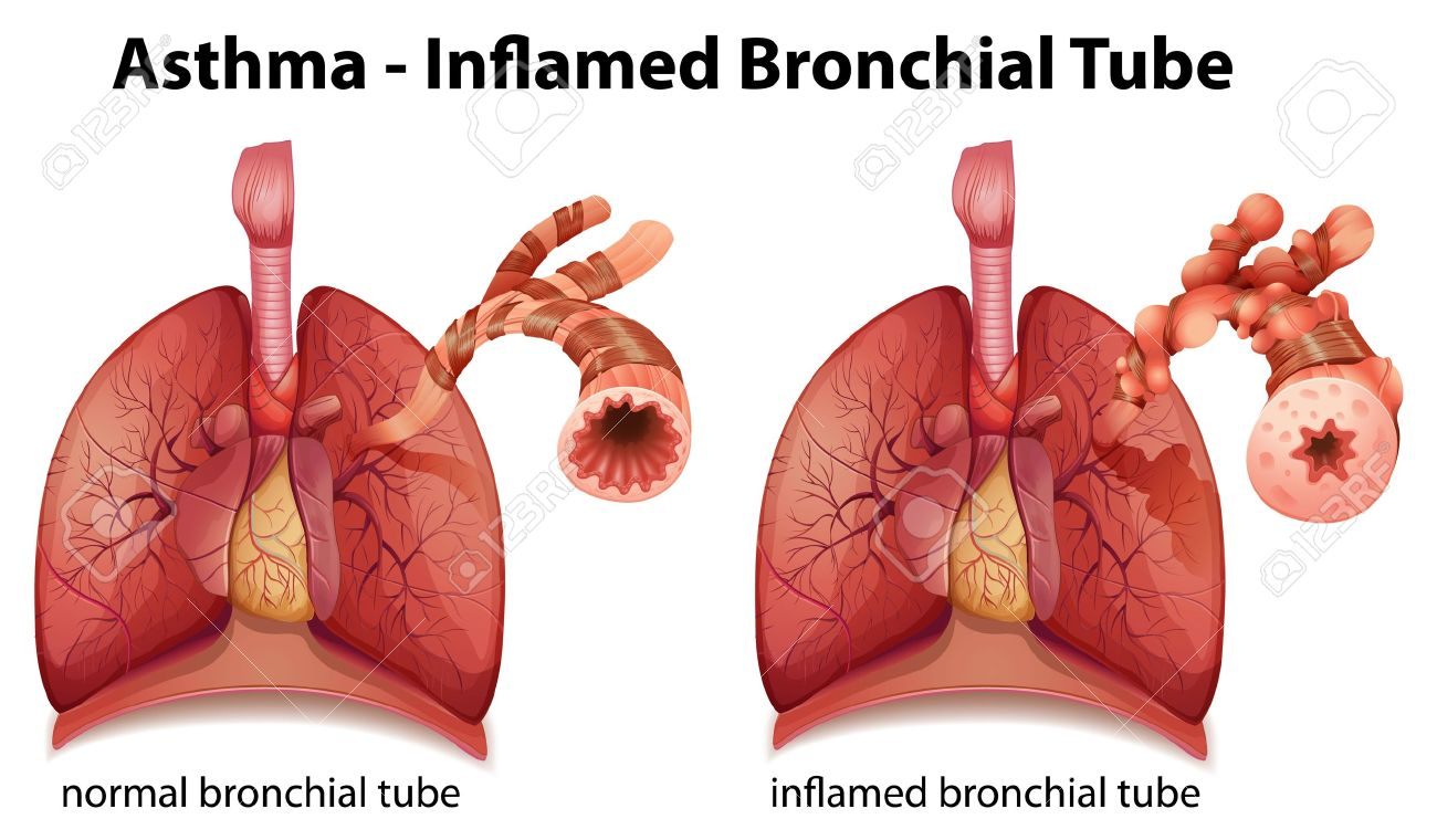 Illustration Showing The Inflamation Of The Bronchus Causing ...