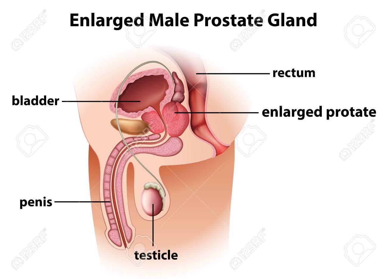 Ilustración De Una Glándula De La Próstata Masculina Ampliada Sobre ...