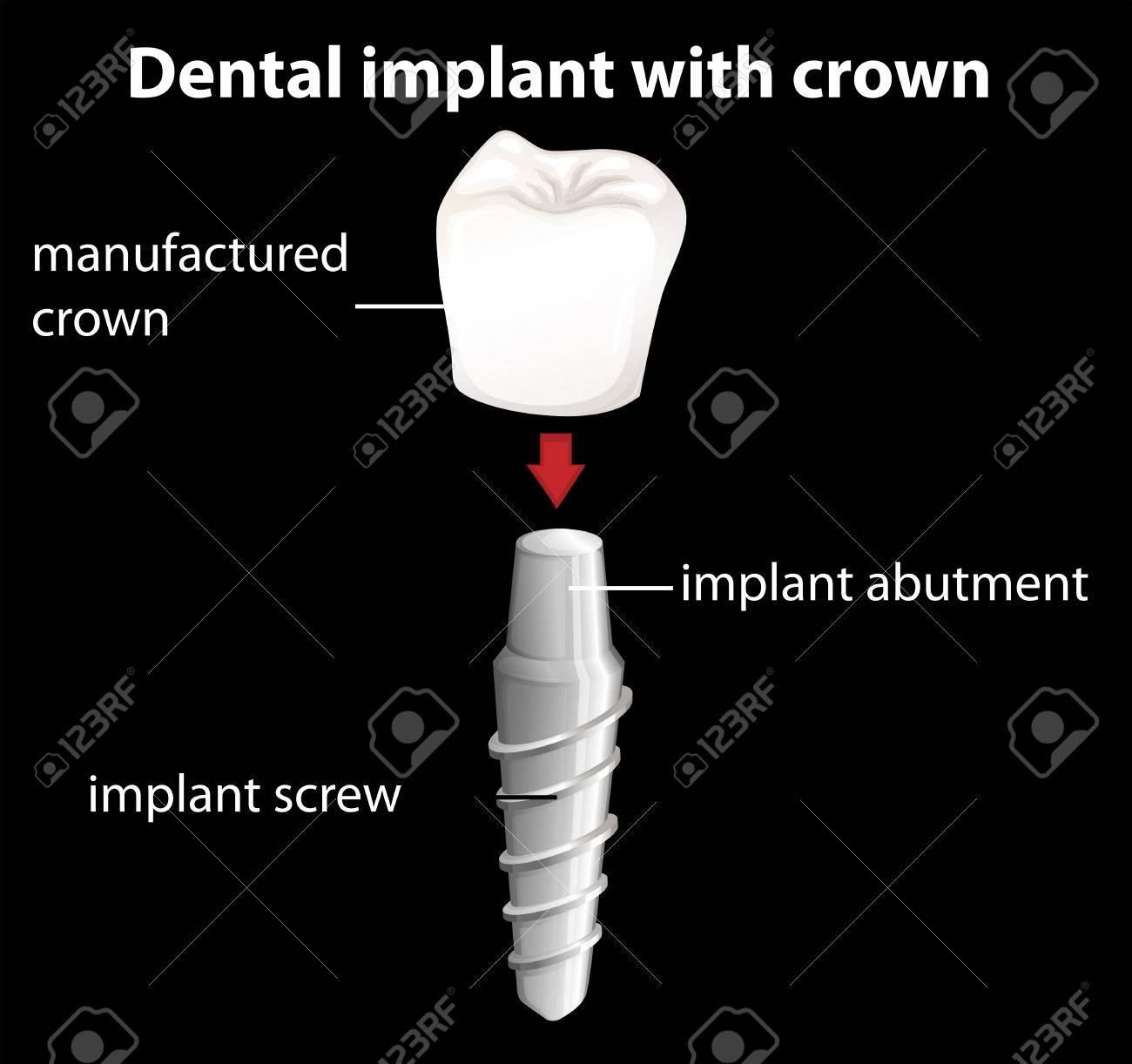 Illustration of a dental implant with crown Stock Vector - 26570910