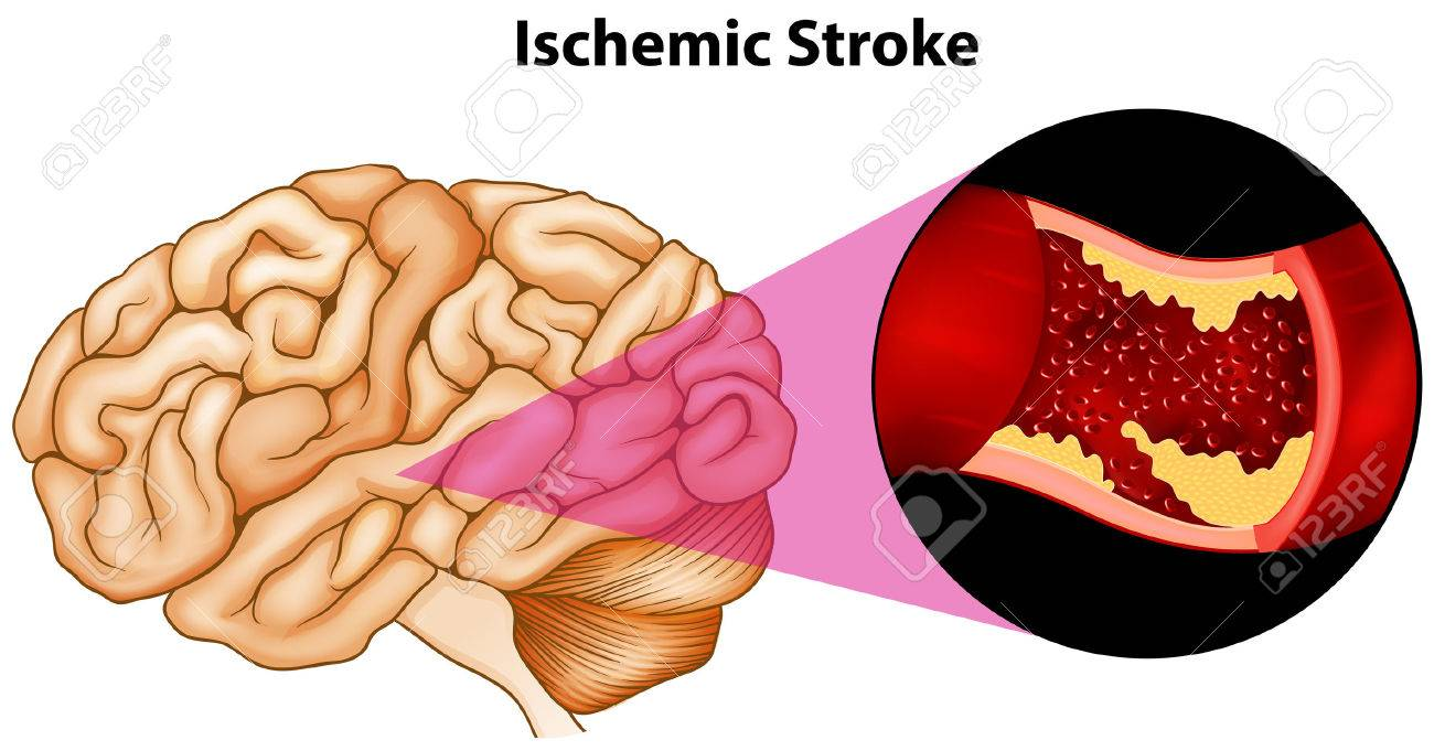 Diagrama De Accidente Cerebrovascular Isquémico Cerebral ...