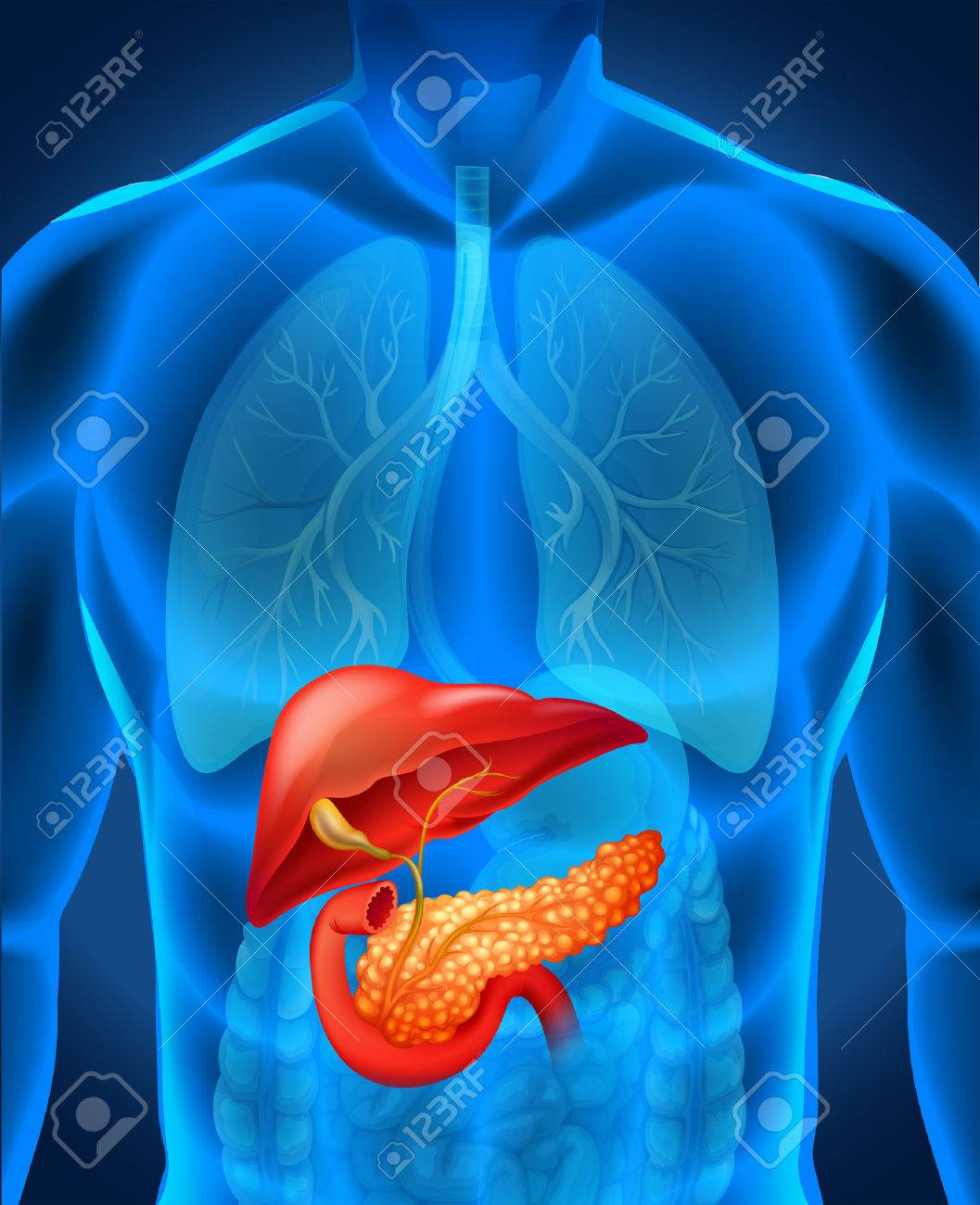 Bauchspeicheldrüsenkrebs Im Menschlichen Körper Illustration ...