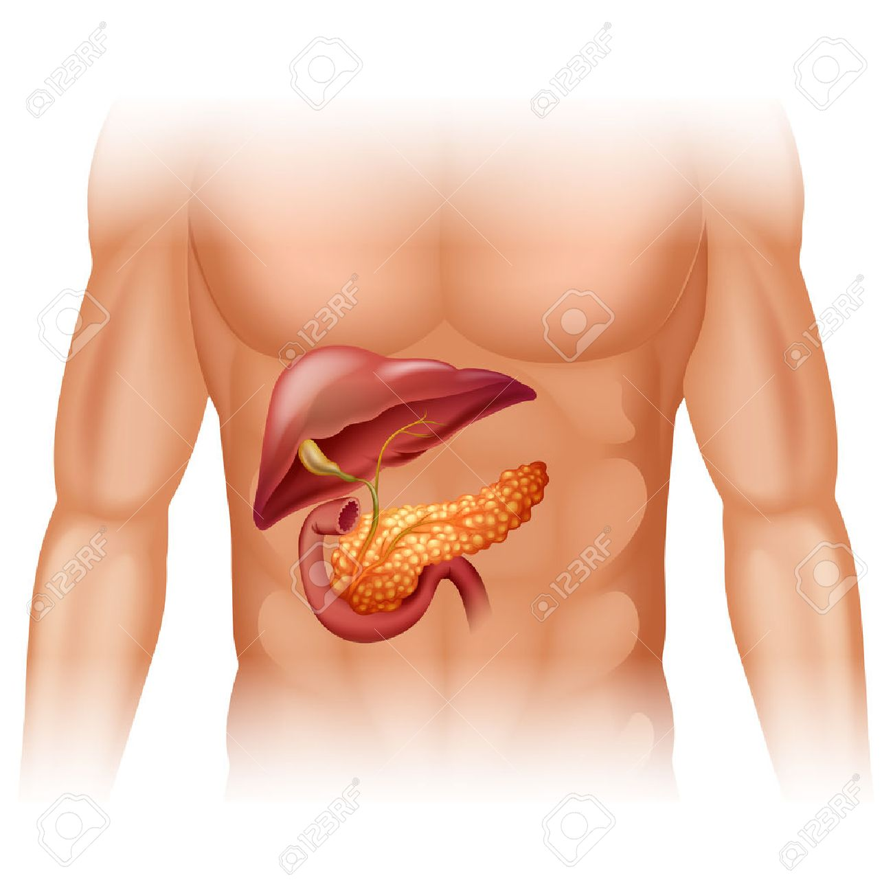 Pancreas Cancer Diagram In Detail Illustration Royalty Free Cliparts ...