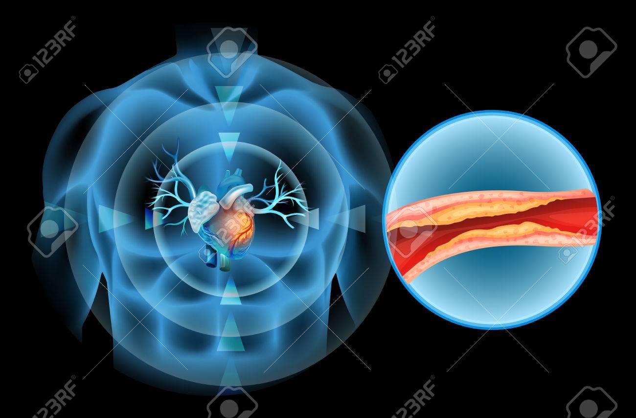 Atractivo Corazón Diagrama Ornamento - Imágenes de Anatomía Humana ...