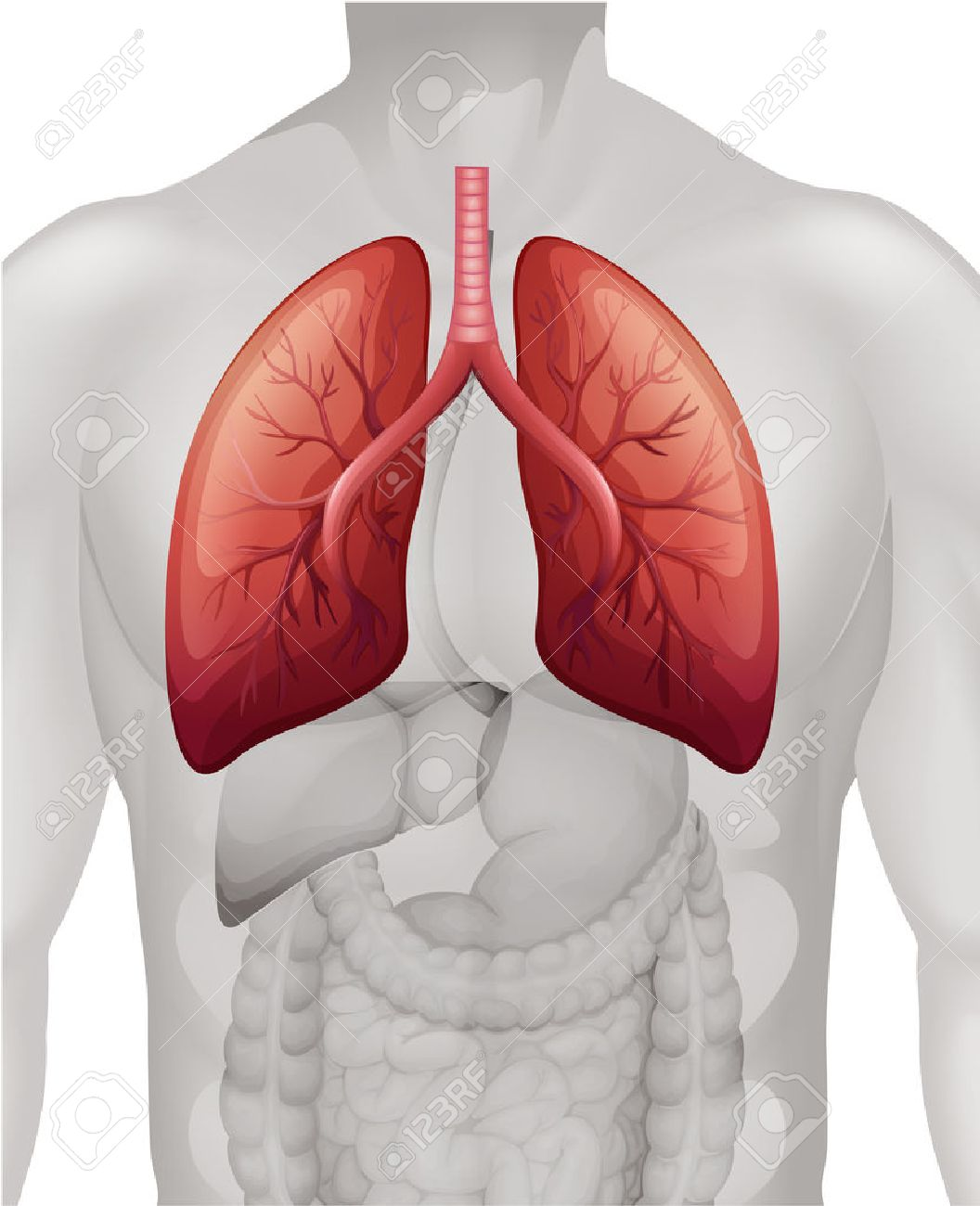 Lung Cancer Diagram In Human Illustration Royalty Free Cliparts ...