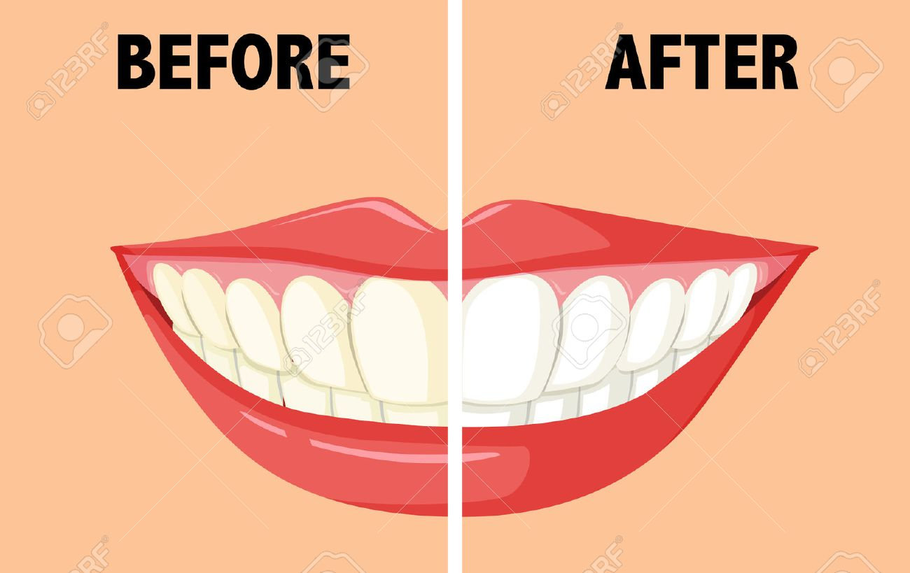 Before and after brushing teeth illustration royalty free cliparts before and after brushing teeth illustration stock vector 48428751 ccuart Gallery