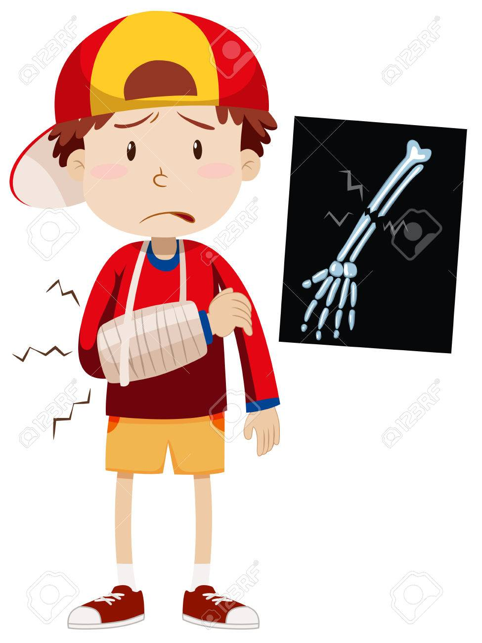 sad boy with broken arm illustration royalty free cliparts vectors rh 123rf com  broken arm clipart