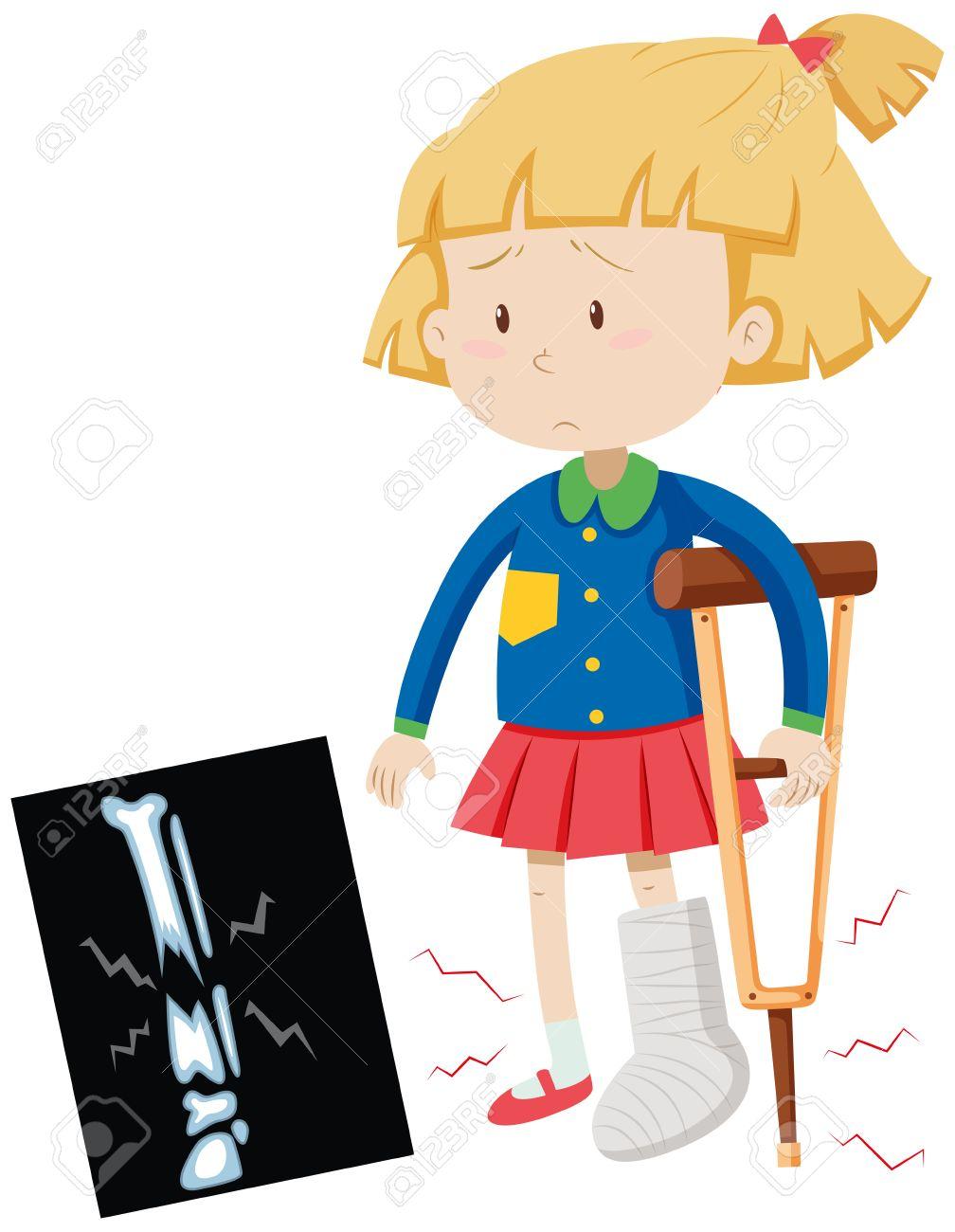 little girl with broken leg illustration royalty free cliparts rh 123rf com broken ankle clipart broken leg clipart images