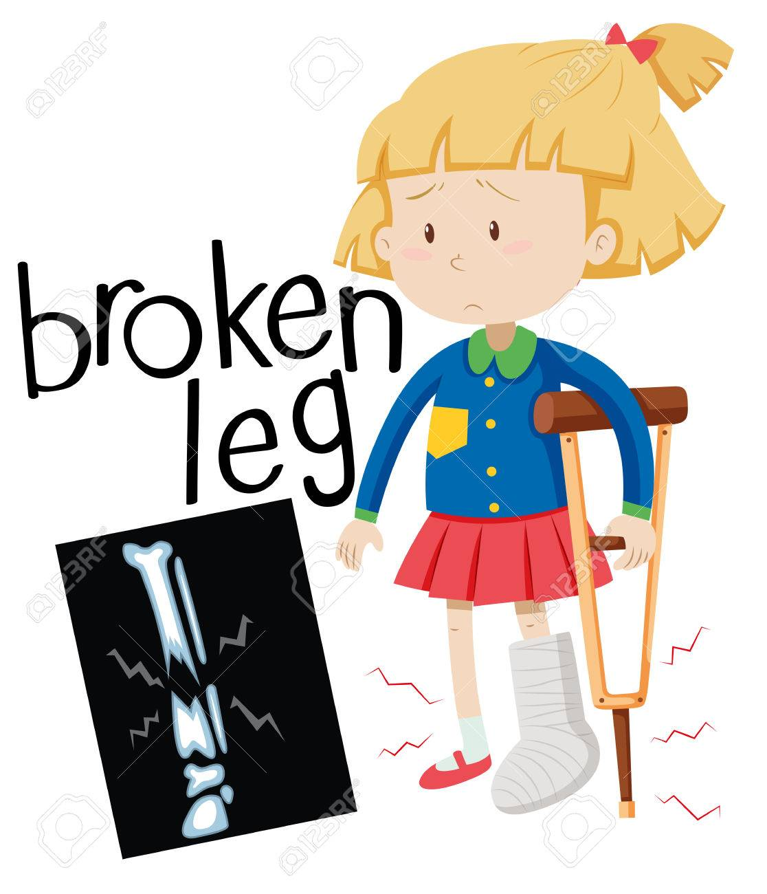 girl with broken leg and x ray film illustration royalty free rh 123rf com x ray clipart black and white x ray clipart images