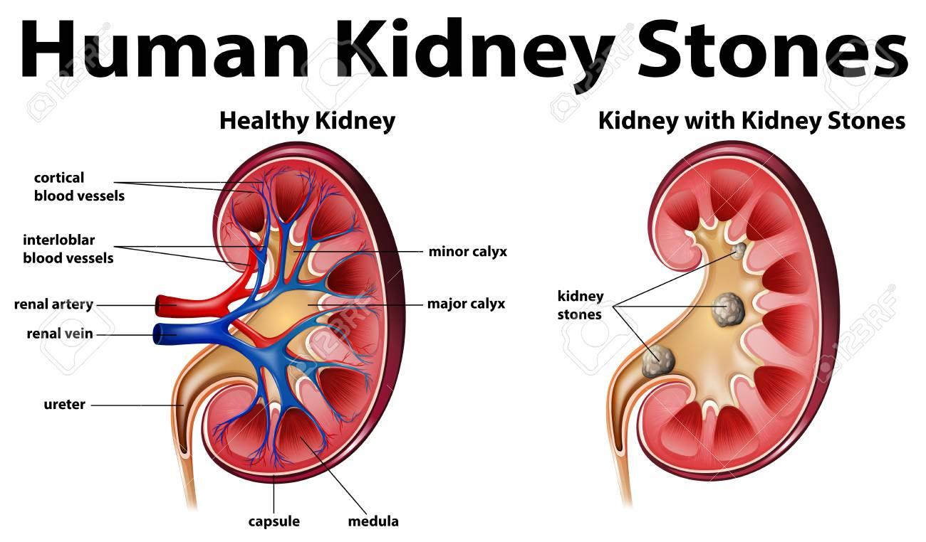 Human Anatomy Diagram With Kidney Stones Illustration Royalty Free