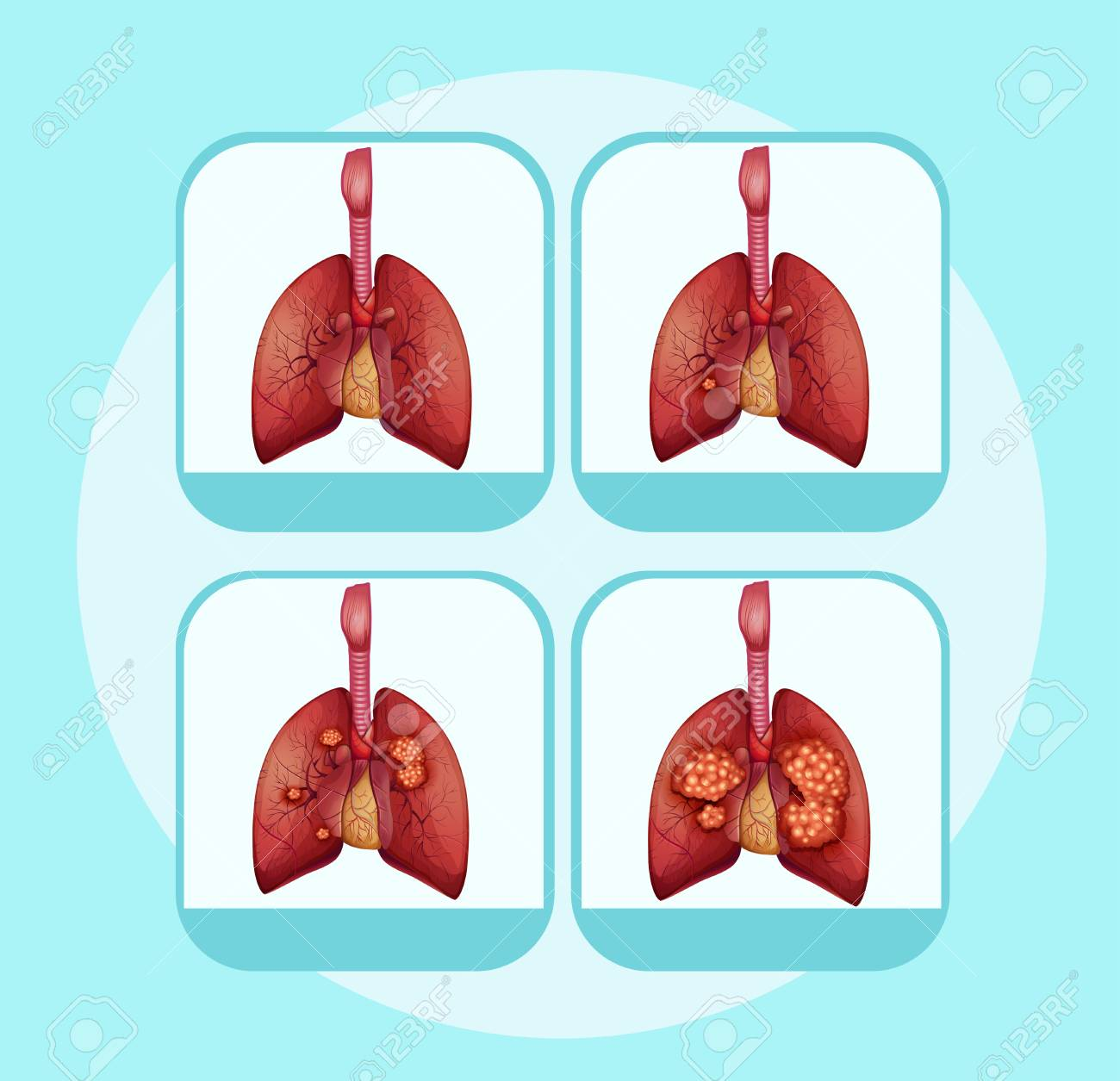 Diagram showing different stages of lung cancer illustration