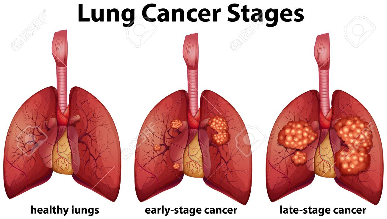 Diagram showing lung cancer stages illustration - 96927669