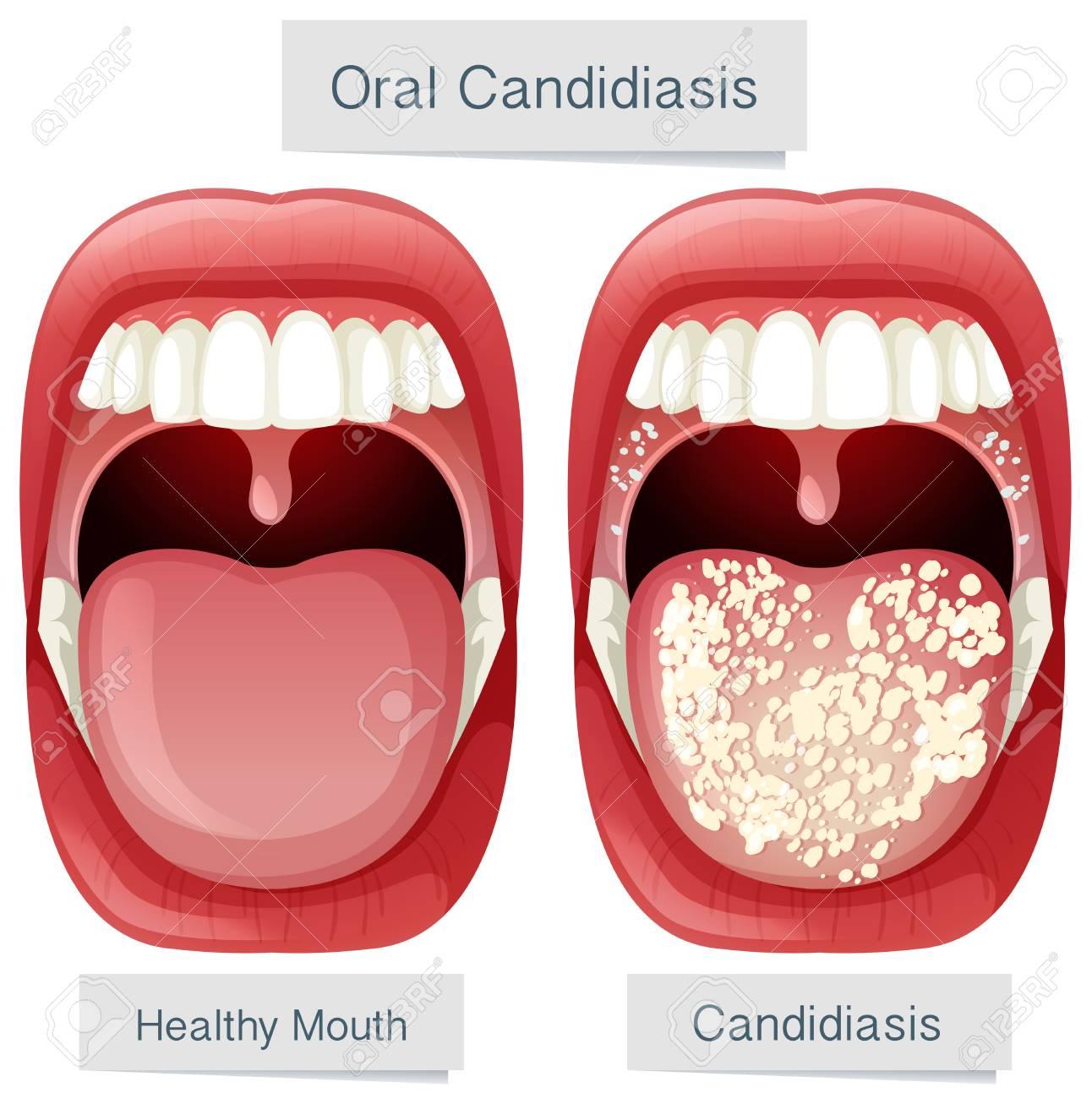 Human Mouth Anatomy Oral Candidiasis Illustration Royalty Free