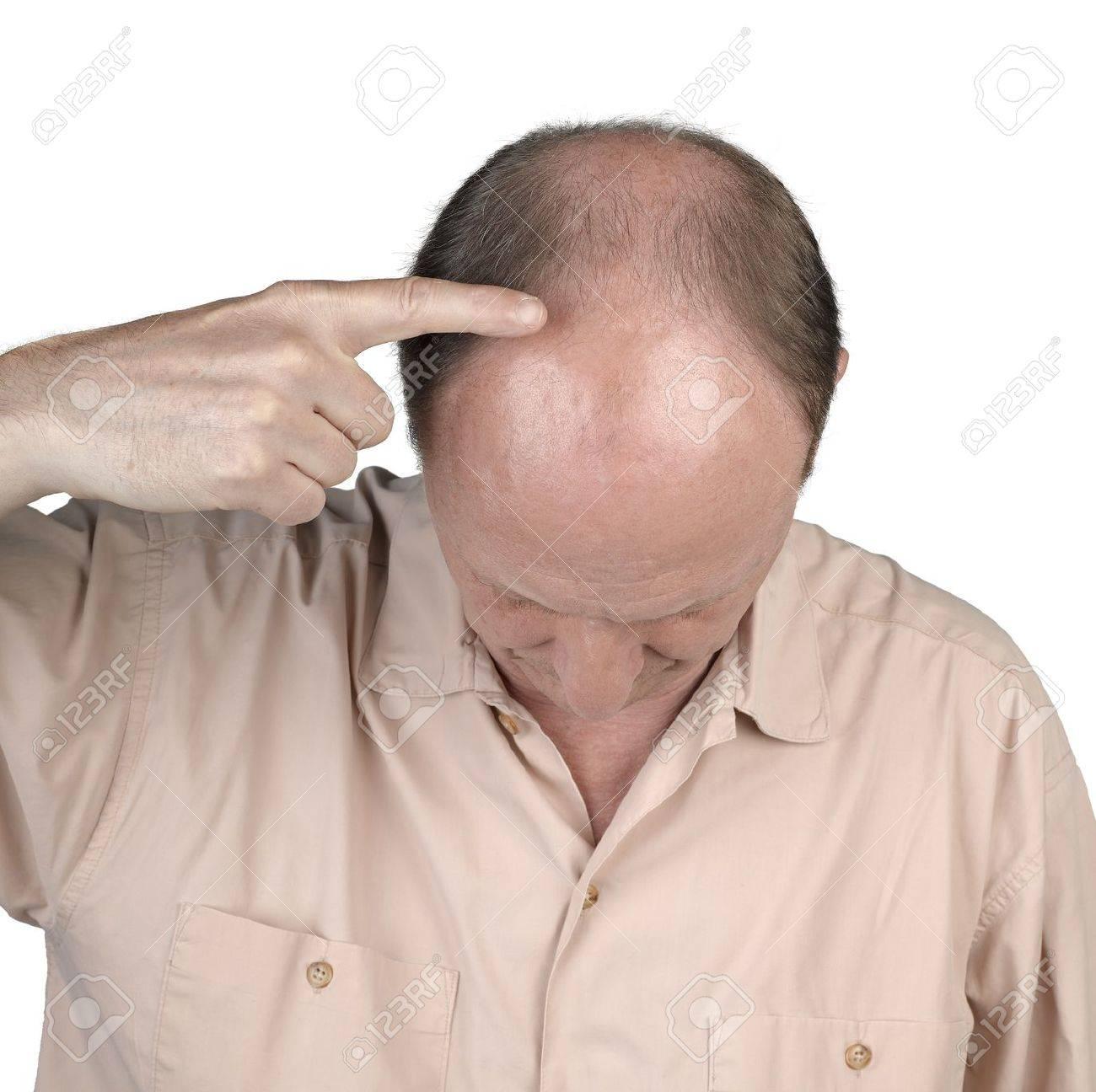 Human hair loss - adult man hand pointing his bald head Standard-Bild - 17389197