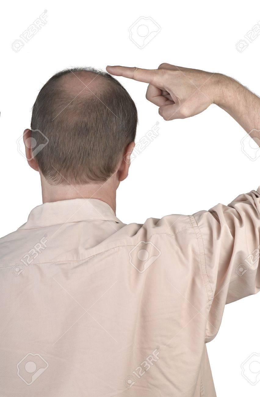 Human hair loss - adult man hand pointing his bald head Standard-Bild - 17389160
