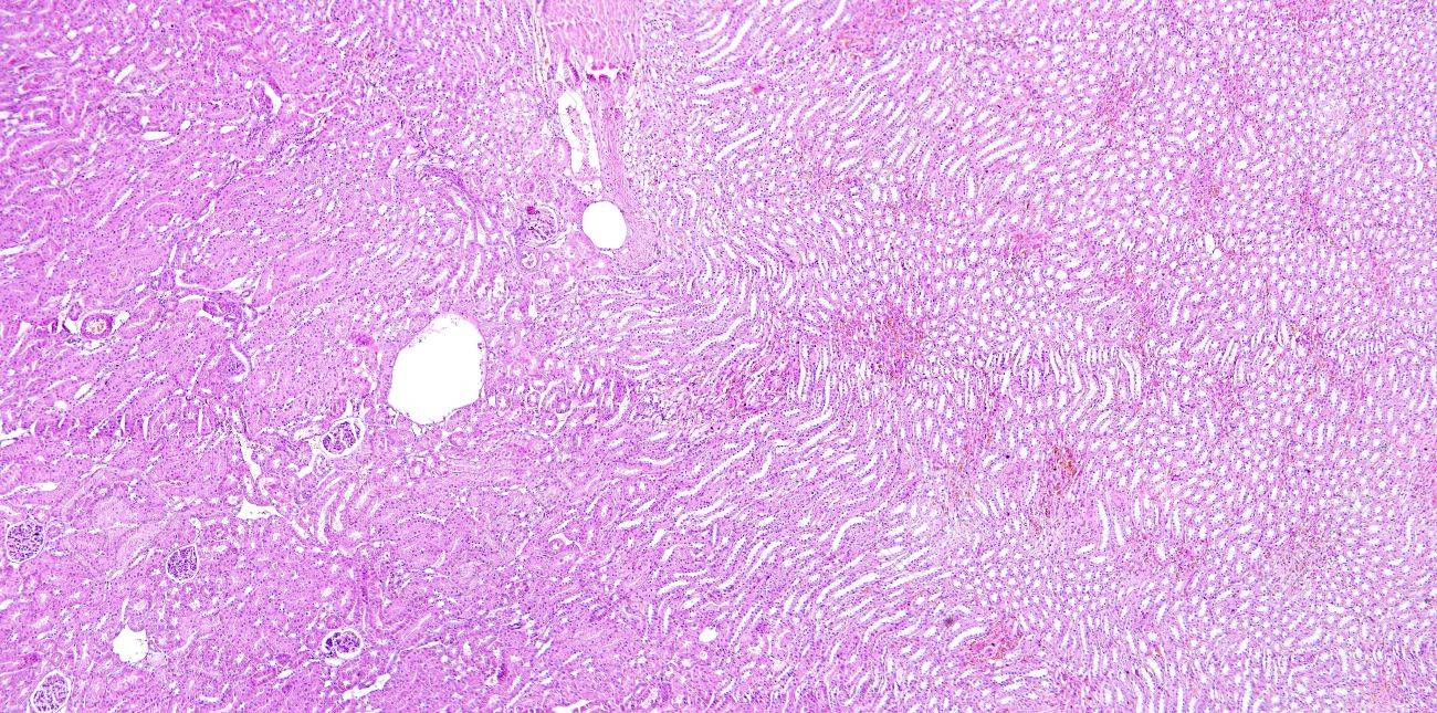 Kidney Tissue Of A Human Stock Photo Picture And Royalty Free Image