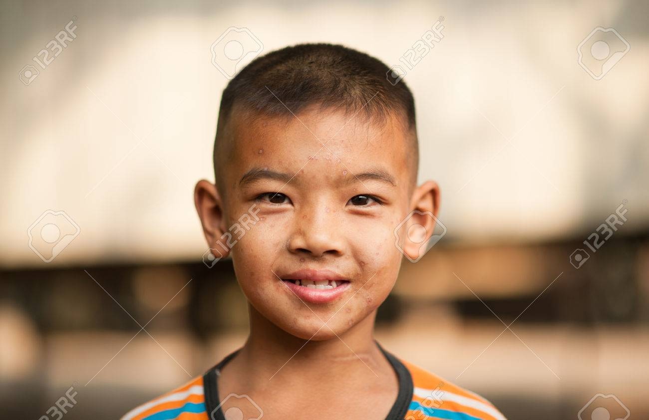 Boy With Scars From Chicken Pox Stock Photo Picture And Royalty