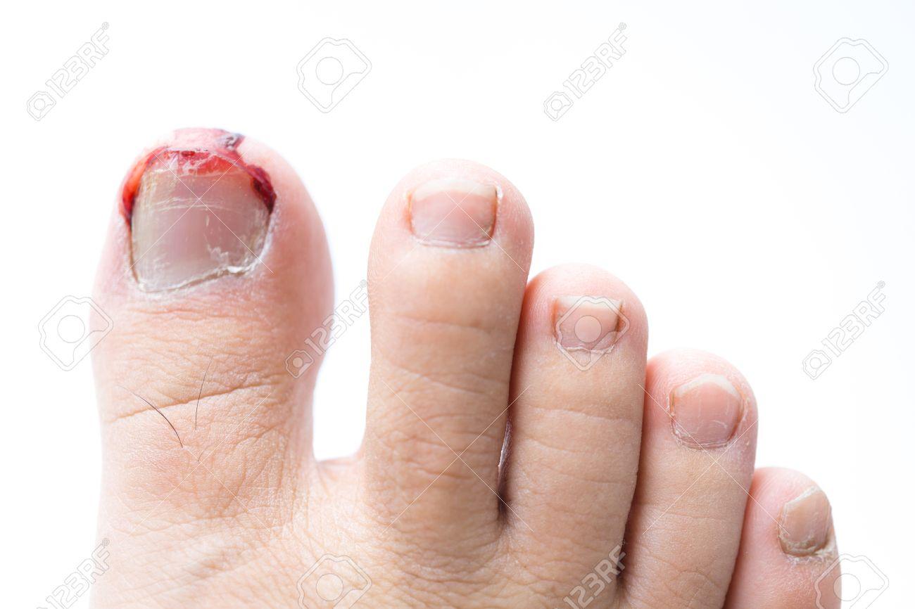 白い背景の負傷した足の爪からの出血 の写真素材 画像素材 Image