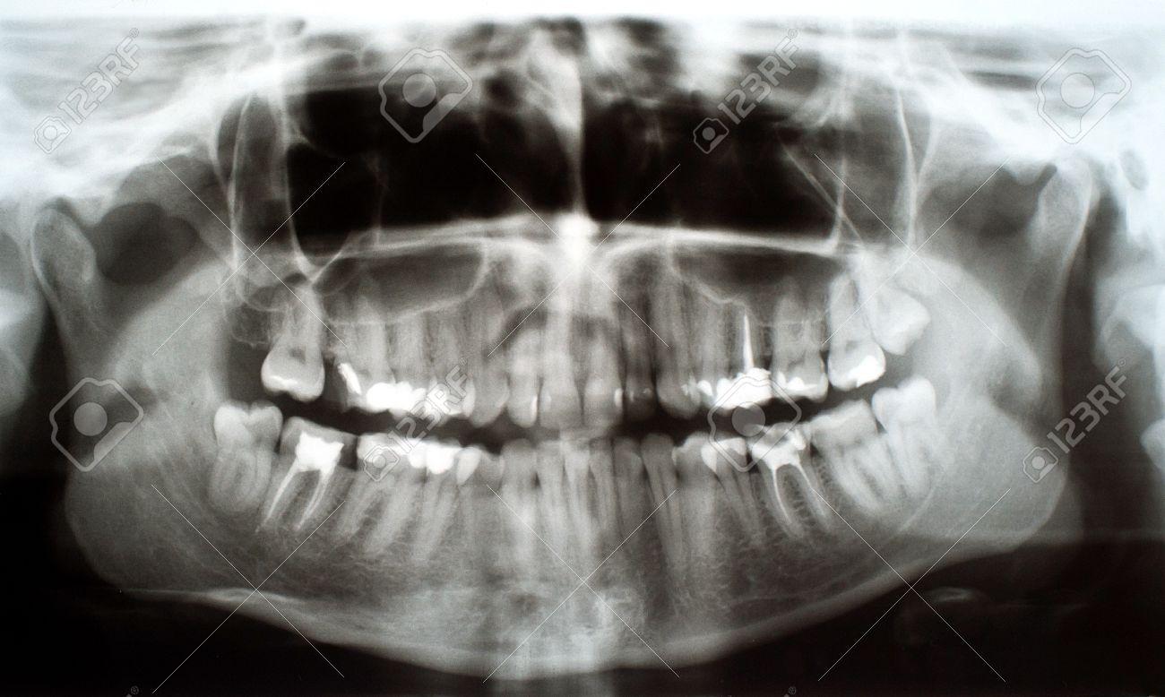 Panorámica, Llena La Boca Dental Radiografía De Rayos X De La Foto ...