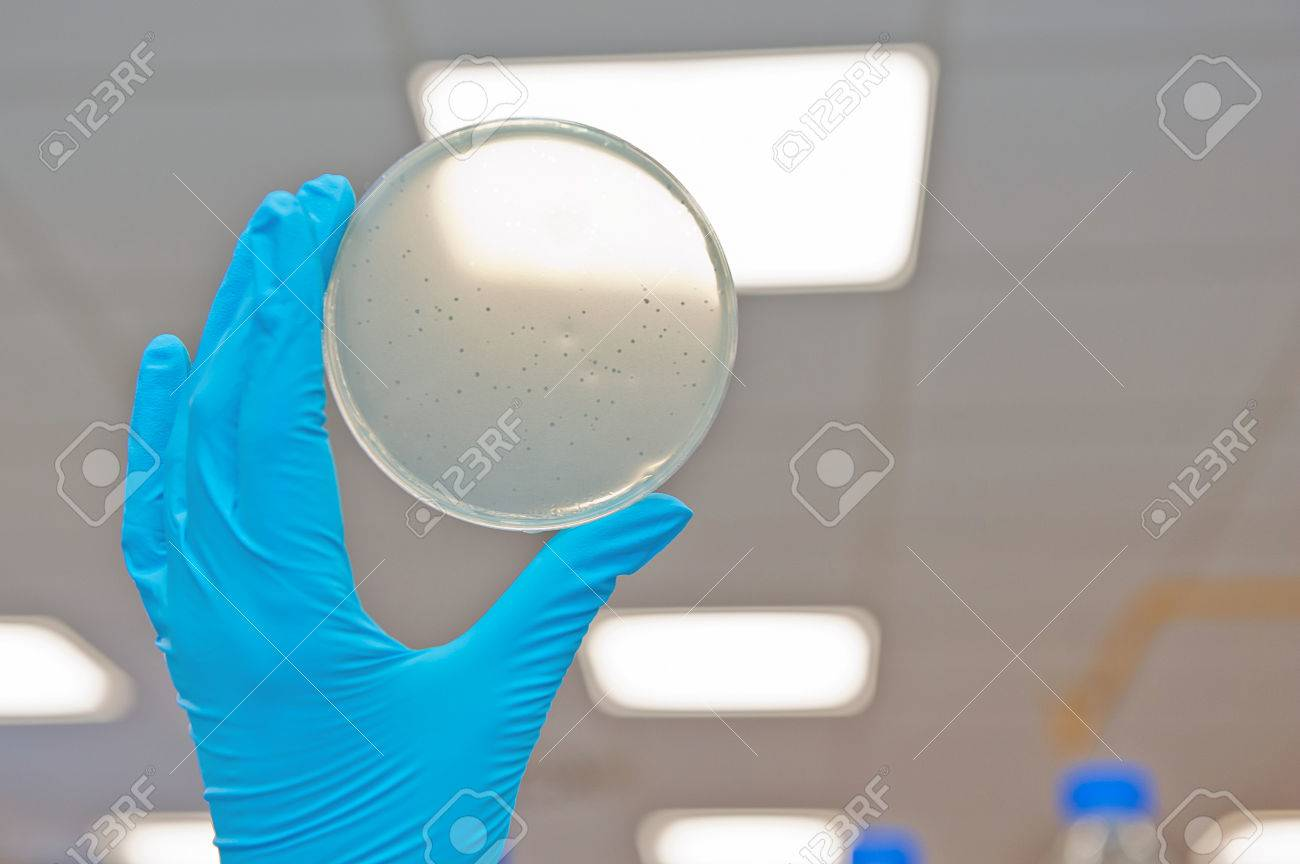 Hand in glove holding petri agar dish with bacterophage plaques Stock Photo - 25825235