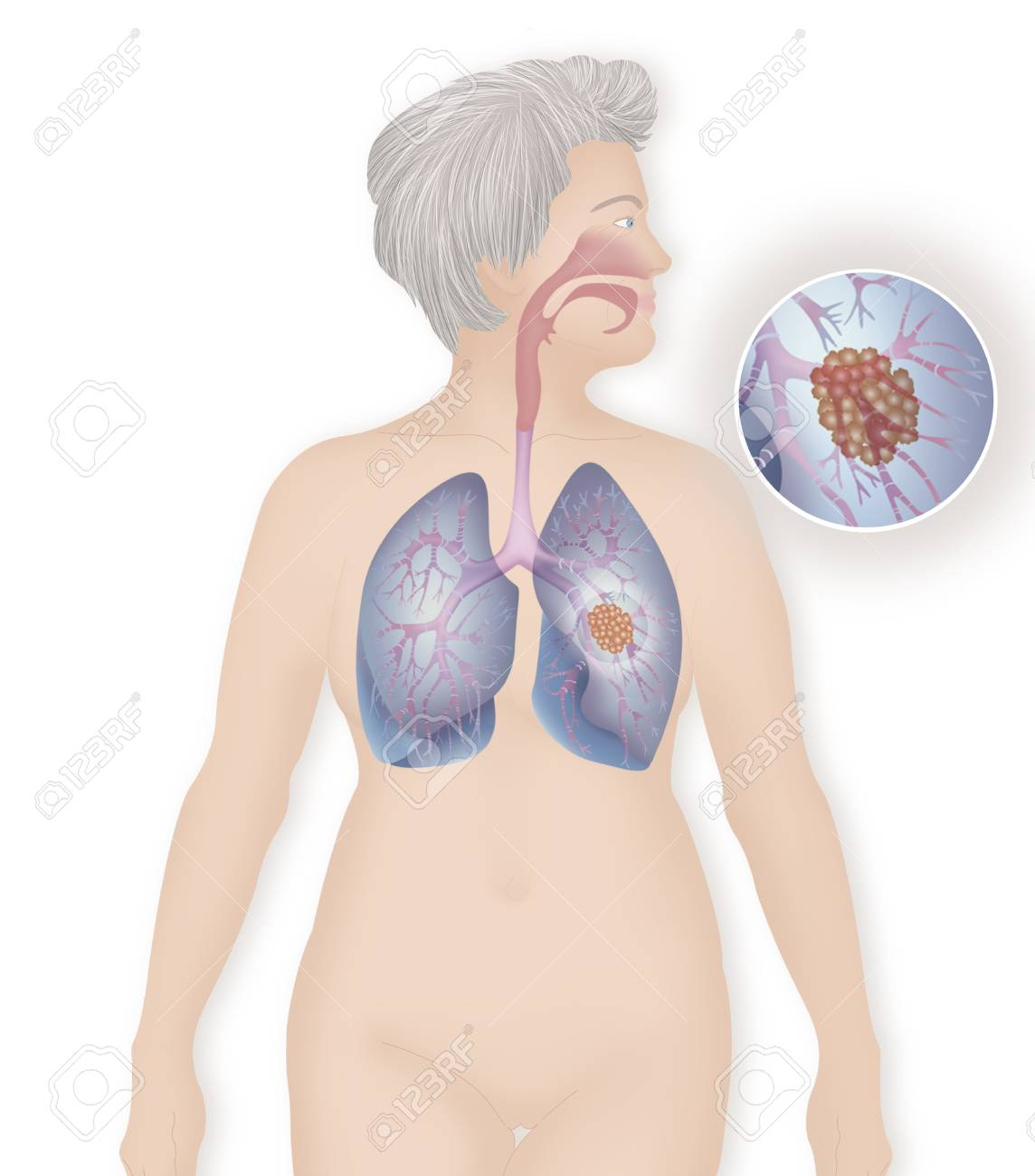 Lung Cancer,Drawing Stock Photo, Picture And Royalty Free Image ...