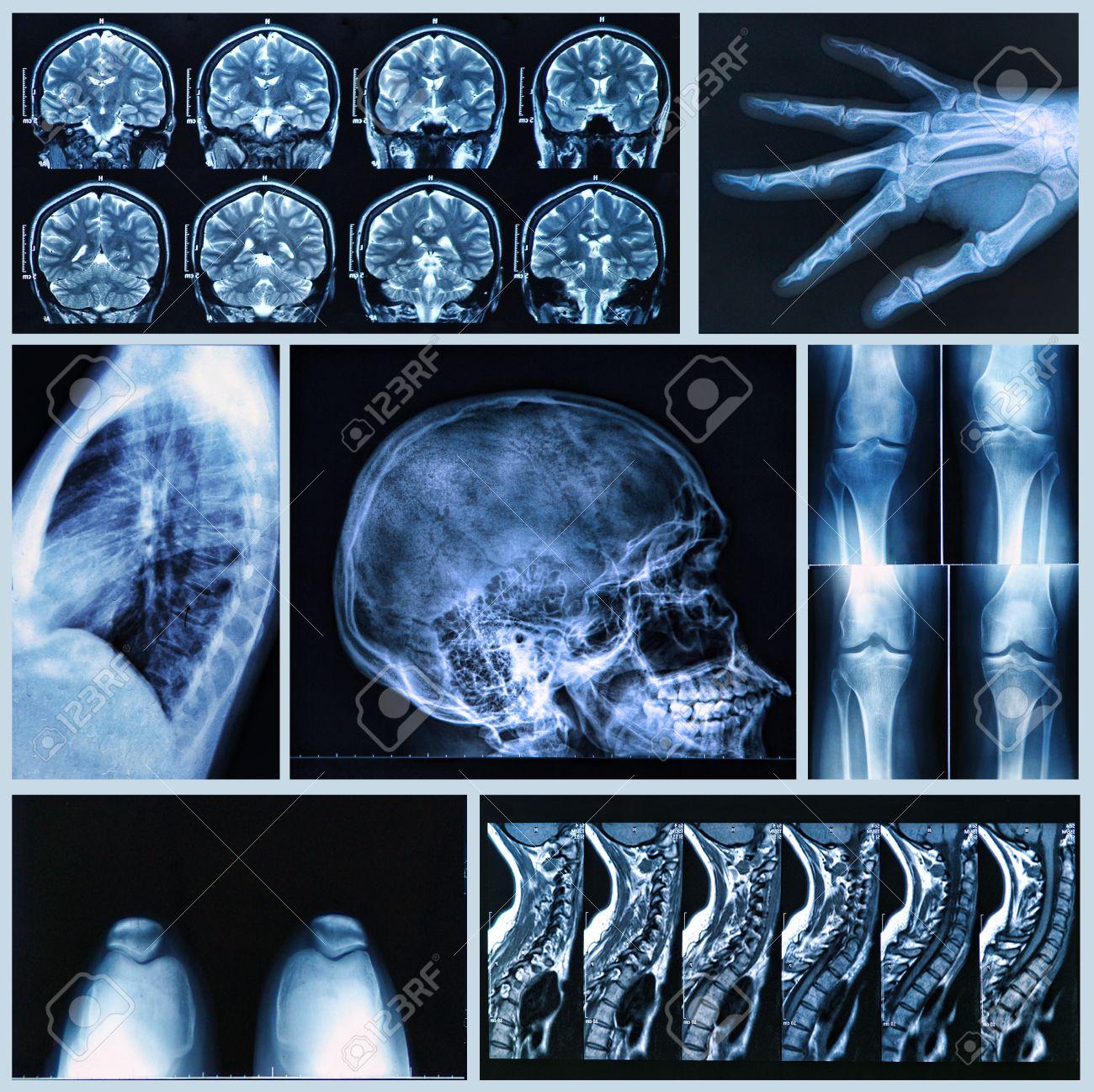 Radiography of Human Bones: x-ray and MRI scans Stock Photo - 24565060