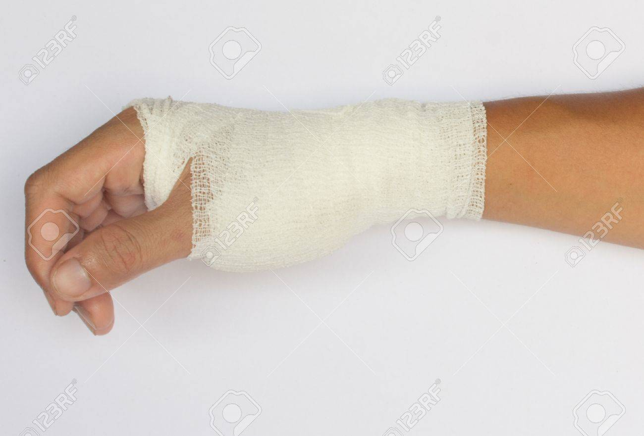 Broken Hand In Cast Isolated On White Background Stock Photo