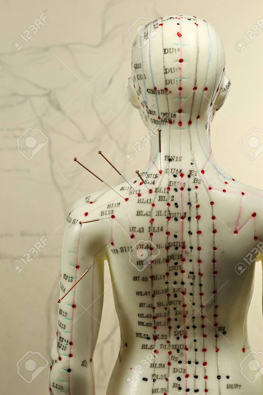 female acupuncture model with needles in the shoulder - 89904043