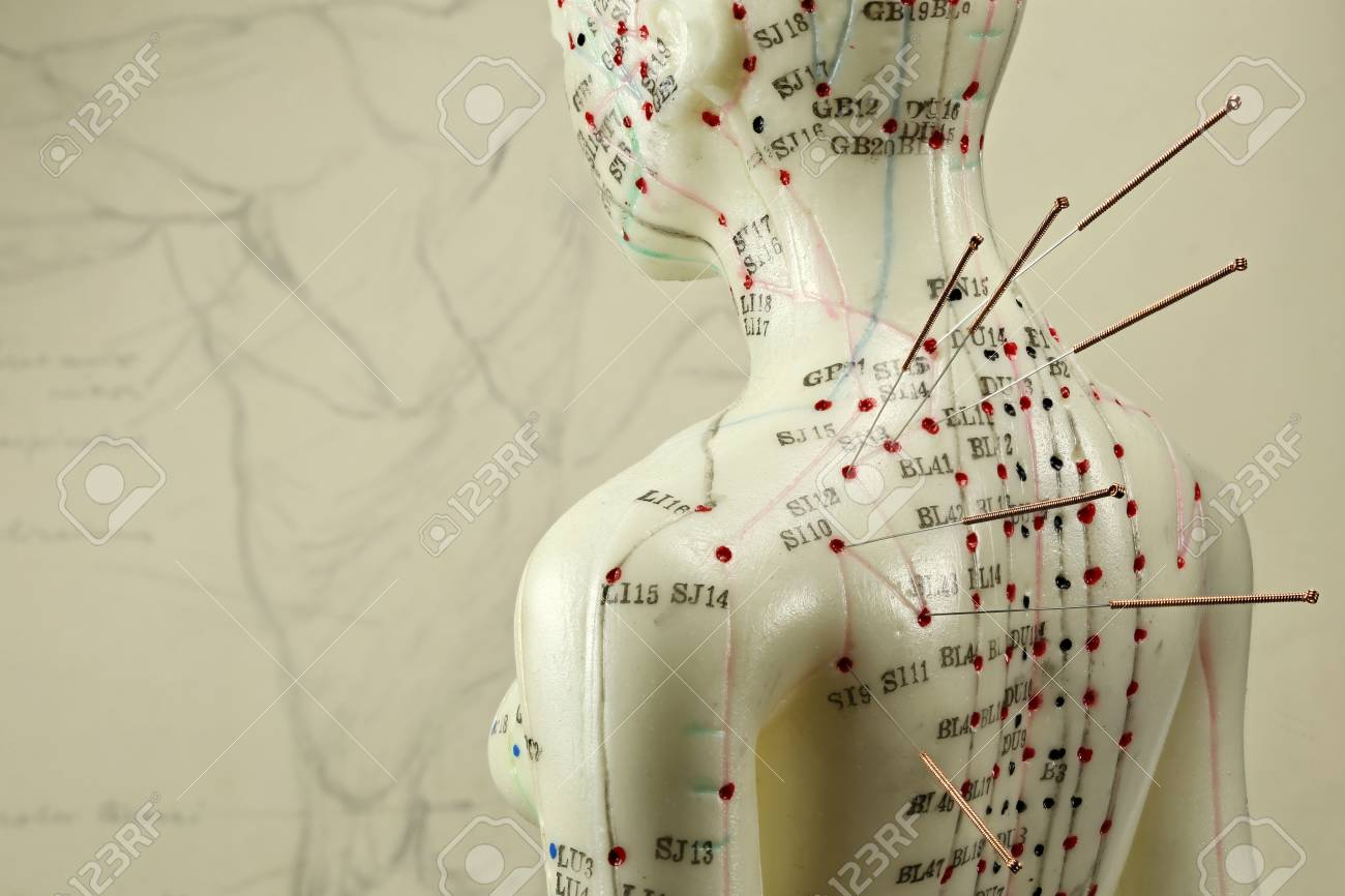 female acupuncture model with needles in the shoulder - 89904048