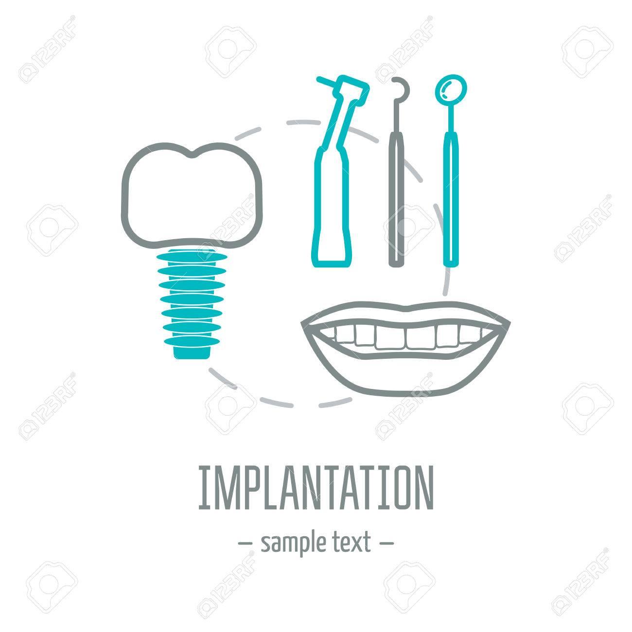 Dental. Colocación De Implantes Dentales. Odontología Cosmetica ...