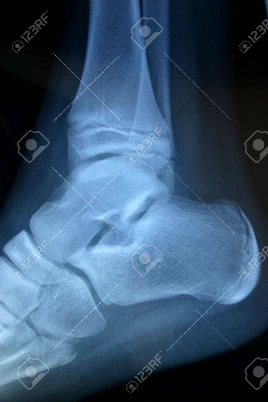 x-ray ankle Stock Photo - 414771