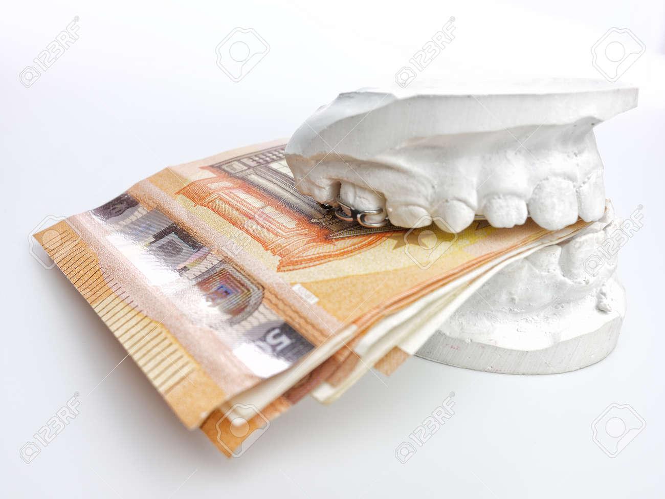 Closeup kid orthodontic dental impression chalk model biting euro money on white background - 155476591