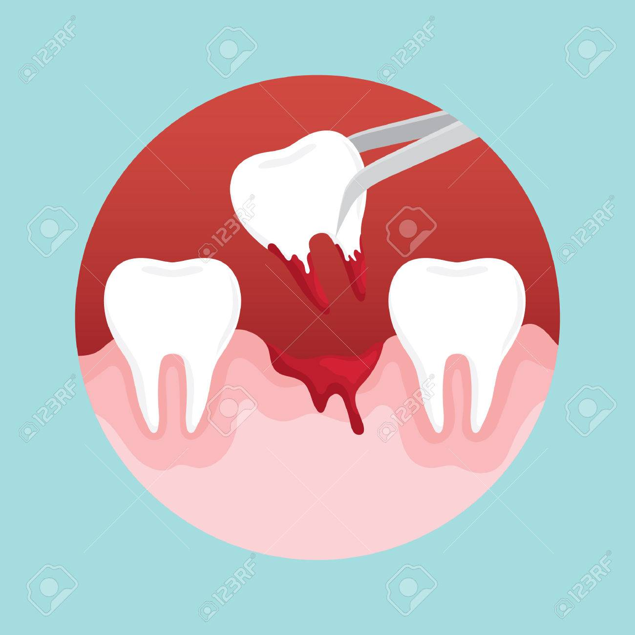 tooth extraction - 53216387