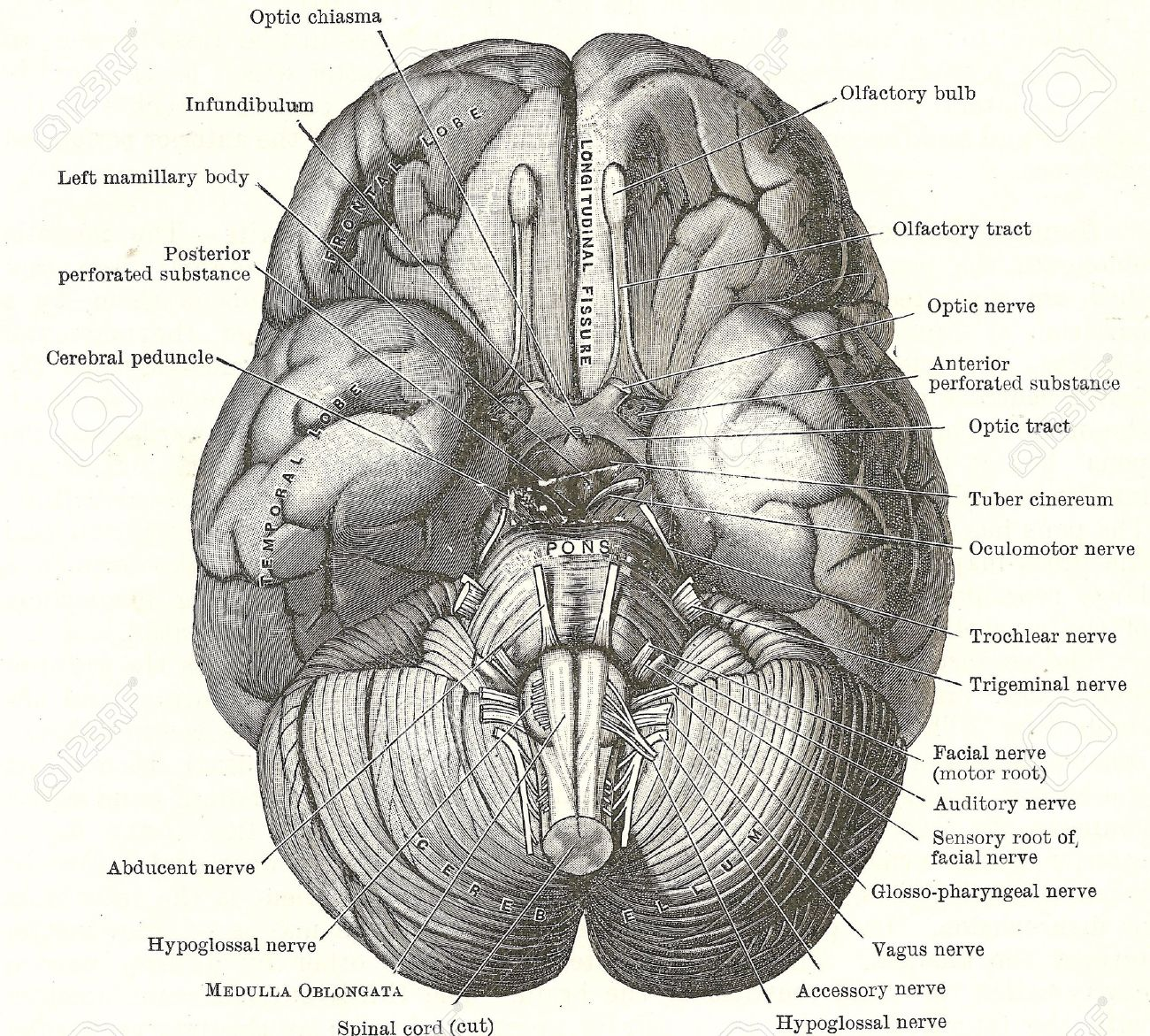 Dissection Of The Human Brain Base Of Brain And Cranial Nerves